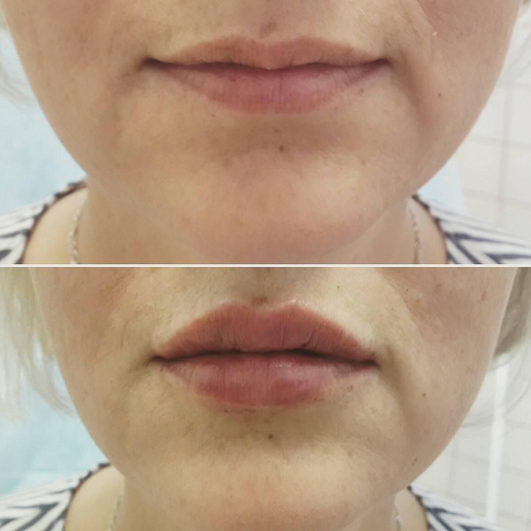 Особенности операции по увеличению губ контурная пластика (хейлопластика)
