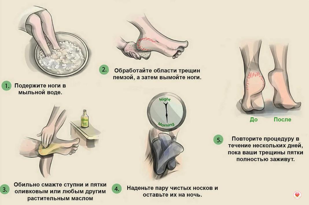 Как смягчить кожу на пятках: обзор эффективных методов и средств