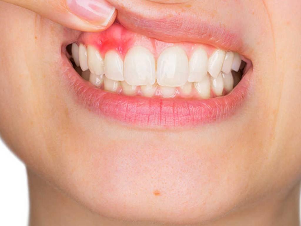 Сколько каналов в 5, 6, 7 и остальных зубах верхней и нижней челюсти, какая длина