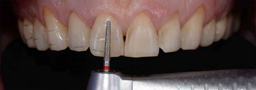 Препарирование зуба под винир – залог качественной эстетической реставрации