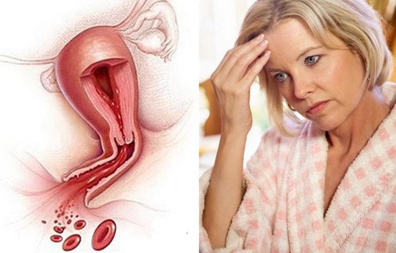 Основные причины появления кровянистых выделений при климаксе