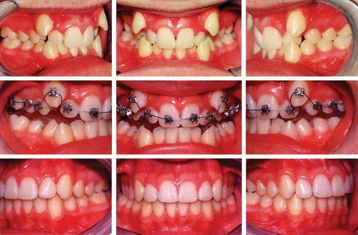 Почему зубы могут шататься в брекетах или после их снятия