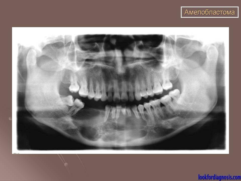 Терапия остеомы, амелобластомы и иных образований верхней и нижней челюсти с помощью резекции пораженных тканей