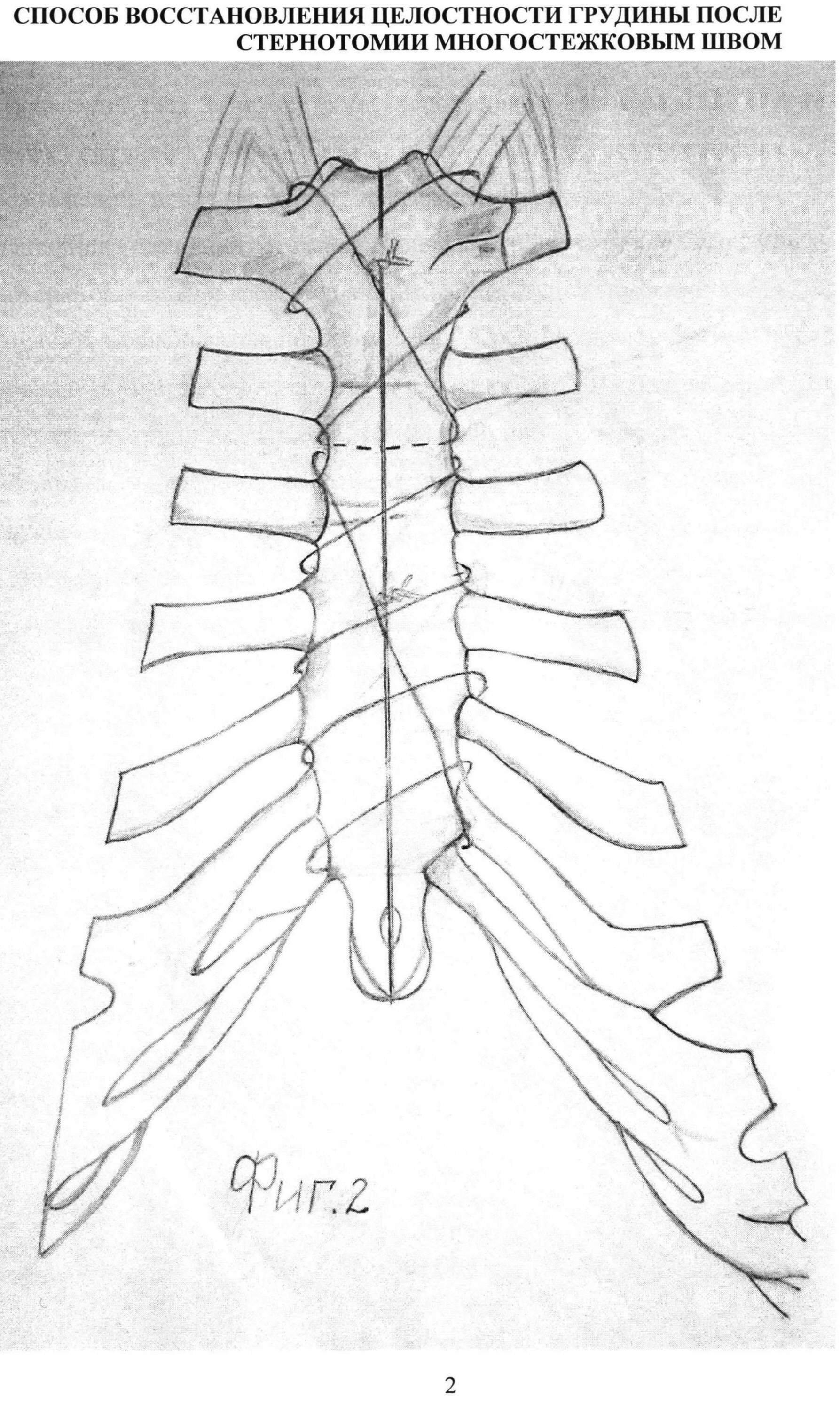 Боль в груди через два месяца после операции на сердце