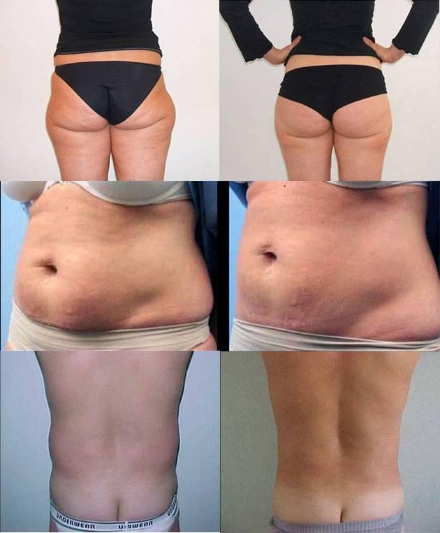 Реальность и вред от липолитиков для похудения