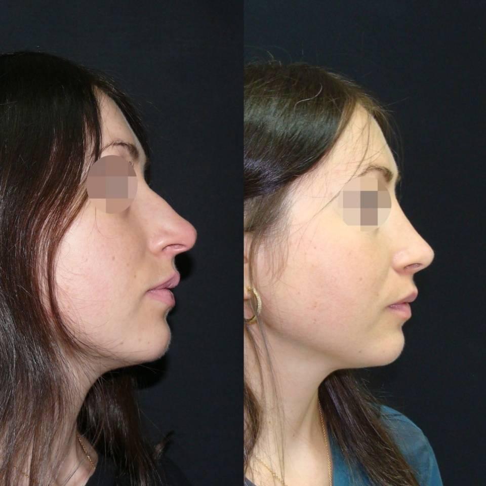 Всё, что нужно знать о последствиях ринопластики: фото до и после процедуры