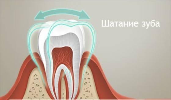 Почему может шататься коренной зуб?