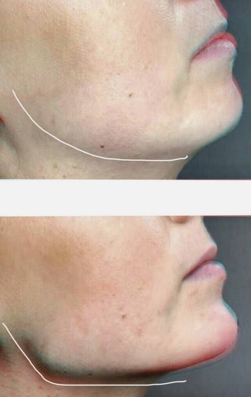 Контурная пластика нижней челюсти