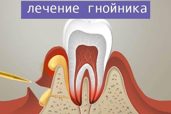 Что делать, если после удаления зуба не заживает и гноится рана, какие применять средства для предотвращения осложнений?