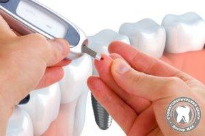 Зубные протезы при сахарном диабете 2 типа