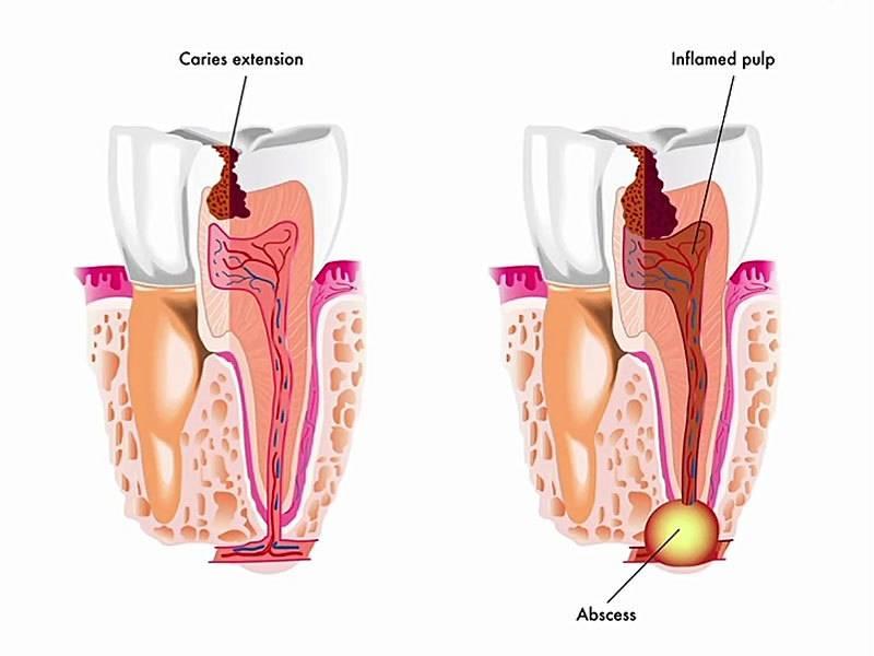 Развитие гнойного абсцесса зуба: симптомы с фото, лечение нарыва и возможные осложнения