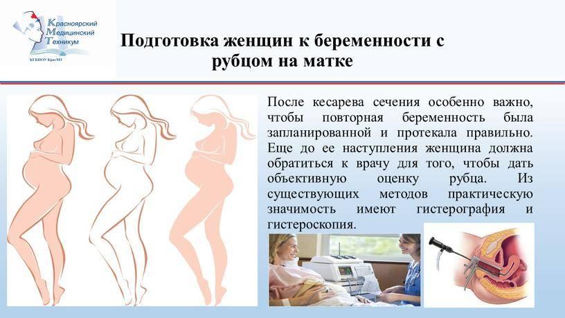 Рубец на матке и возможность естественных родов (подход белорусских медиков)