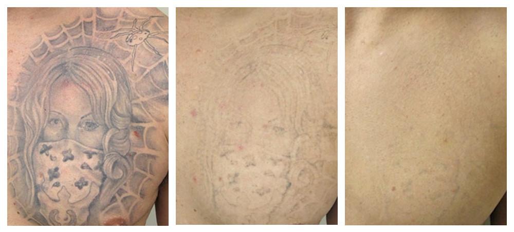 Убить набитое. как удаляют татуировки