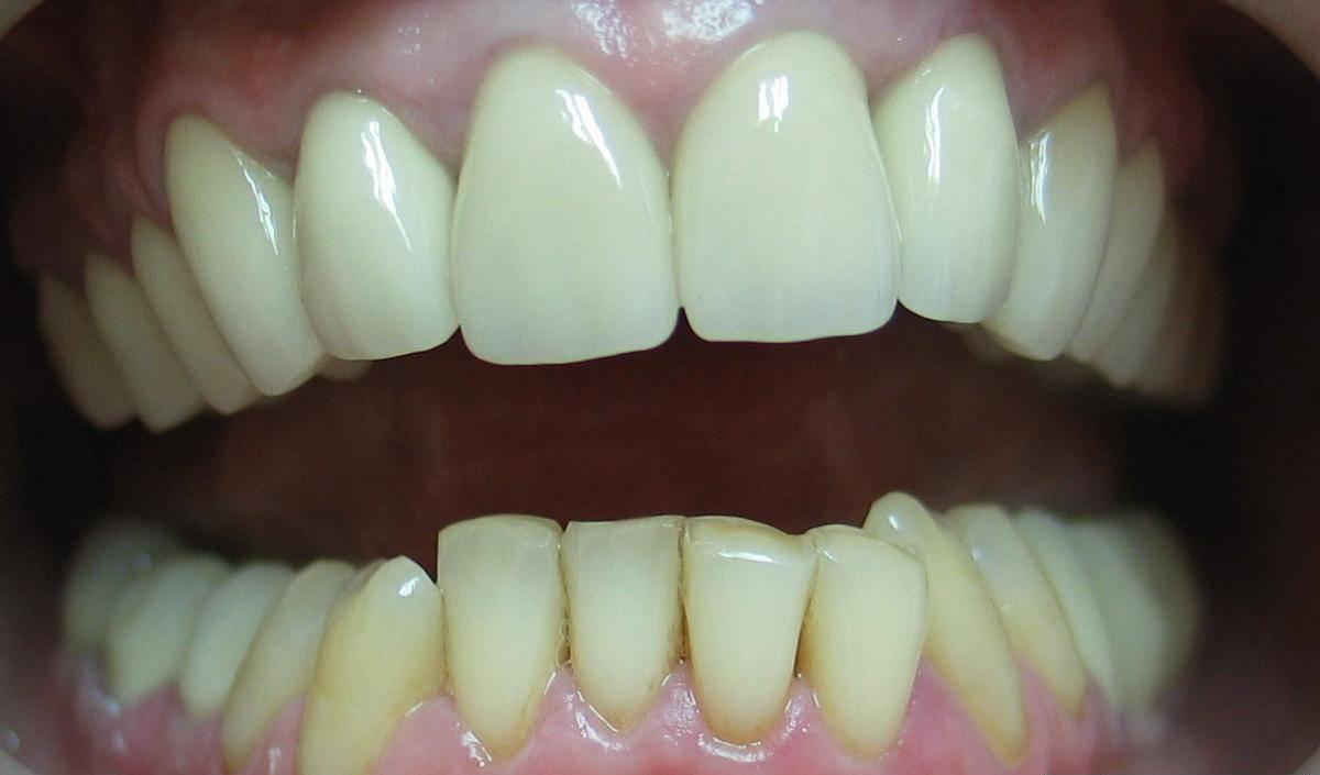 Коронки на передние зубы: виды, стоимость, фото