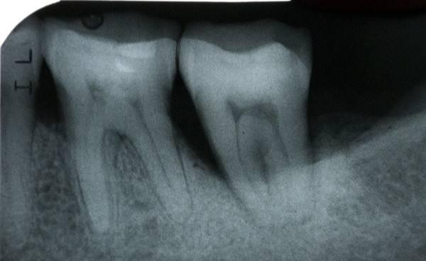 После установки штифта при надавливании болит зуб: как избавиться от боли?