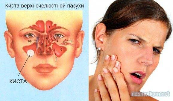 Киста пазухи носа мкб-10: киста гайморовых пазух у взрослых