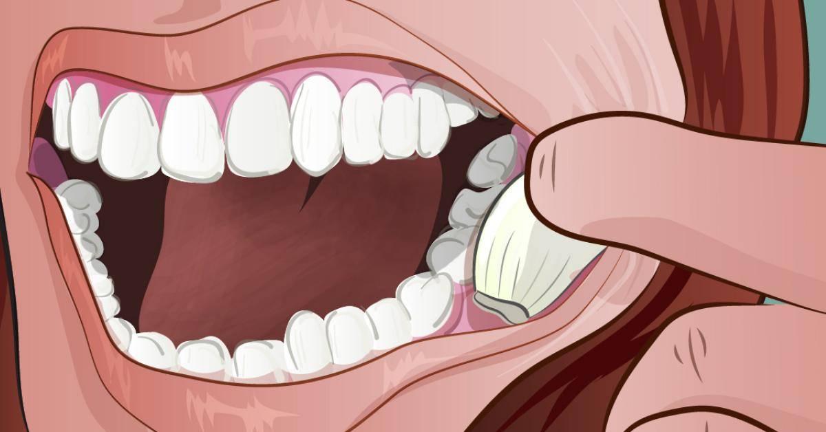 Советы докторов по применению чеснока от зубной боли и действенные рецепты лекарственных примочек