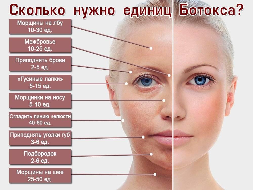 Ботулакс и ботокс – в чём разница и что лучше?
