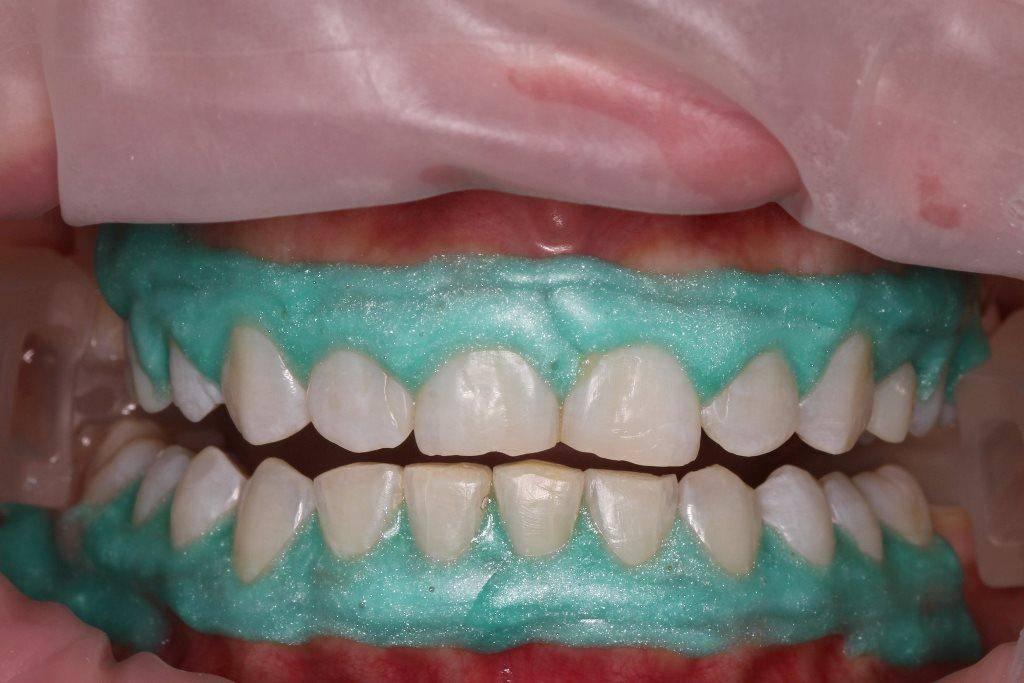 Новости и статьи в рубрике «детская стоматология»