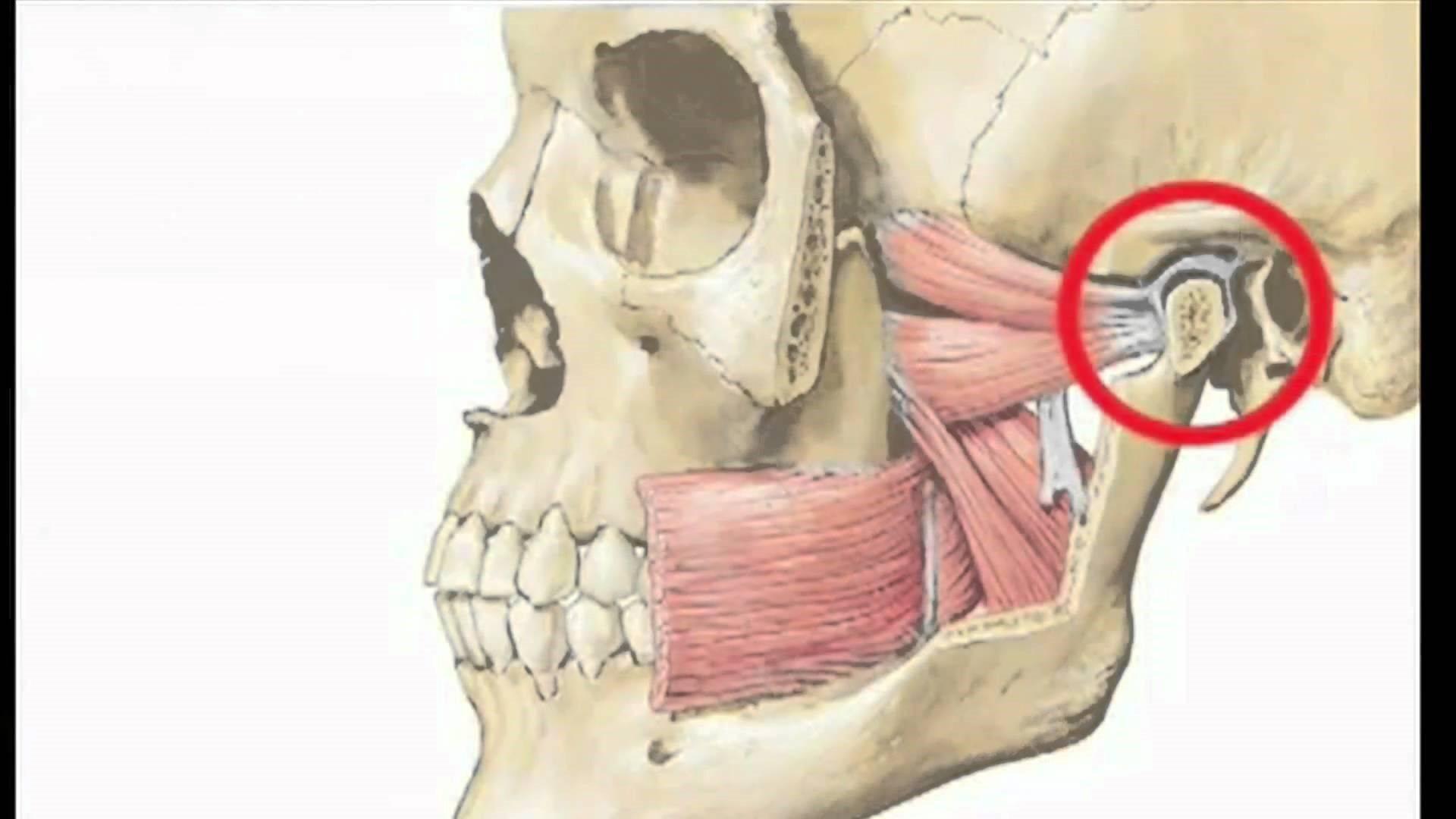 Артрит челюстного сустава. что делать, если воспаление челюстного сустава не проходит