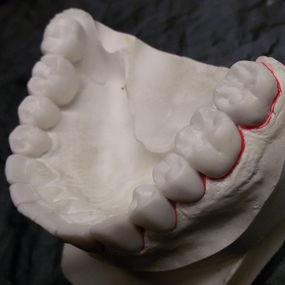 Простая инструкция по моделированию зубов из воска