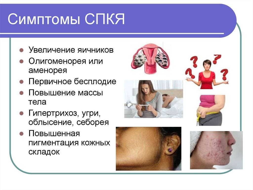 Причины и формы первичной гипофункции яичников