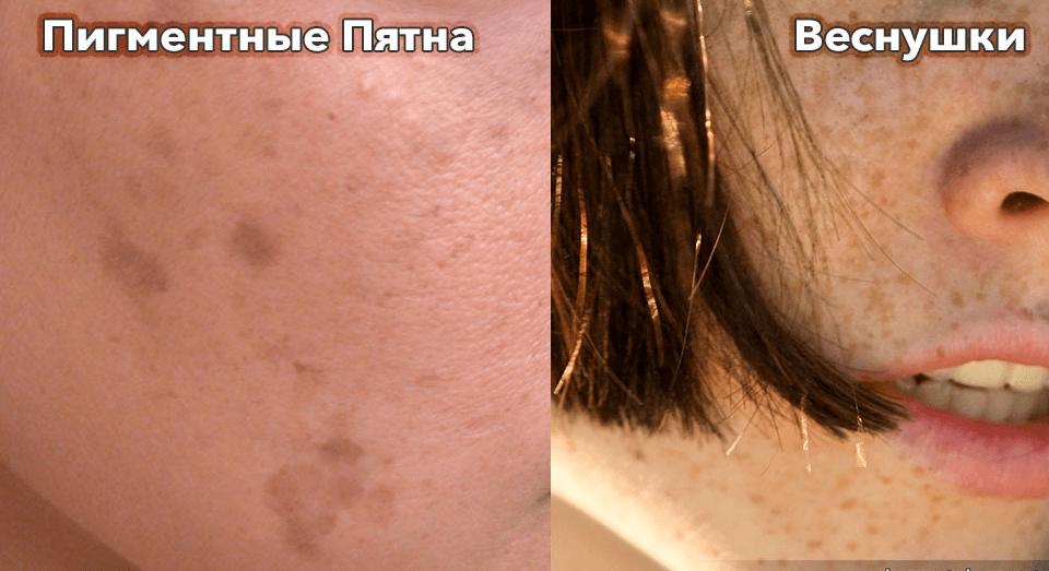 Рецепты народной медицины против возрастных пигментных пятен на лице