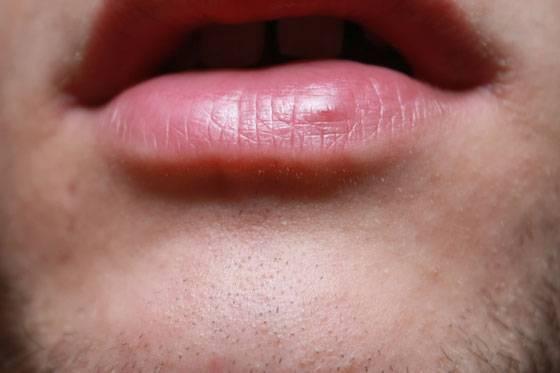 Синее пятнышко на губе. темные пятна на губах