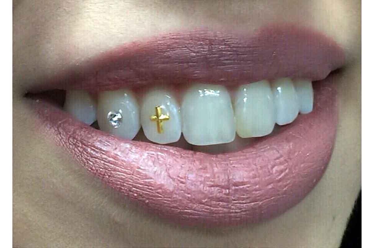 бриллиант на зубах фото нас