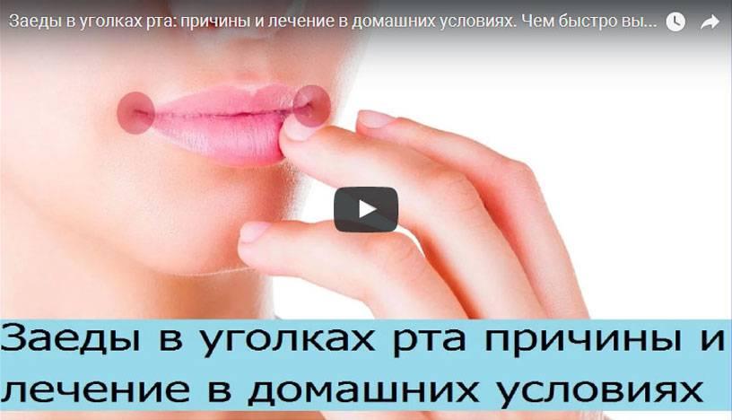 Заеды в уголках рта: возможные причины и тактика лечения трещинок