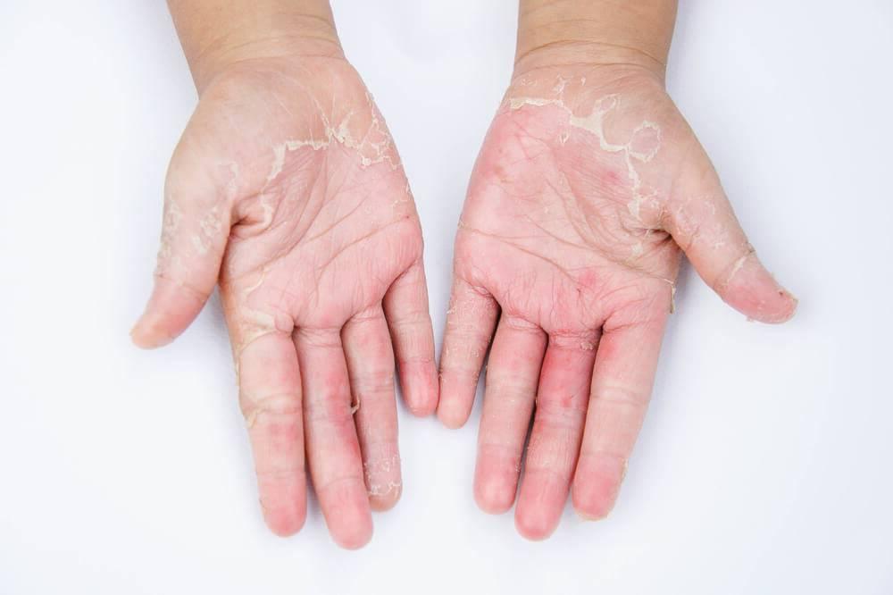 Мокрая экзема на руках и ногах у детей и взрослых: причины и последствия