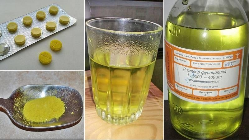 Полоскание содой при стоматите: когда разрешается? как проводится?