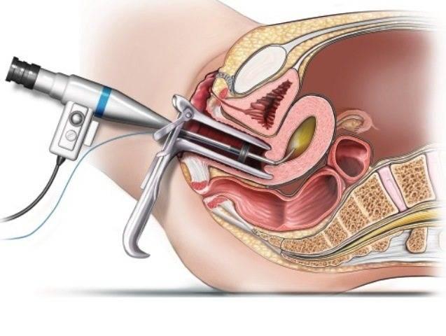 Резектоскопия полипа матки