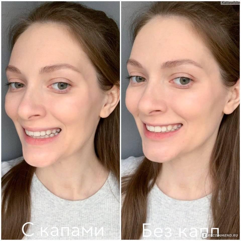 Функции ретенционных кап после ношения брекетов