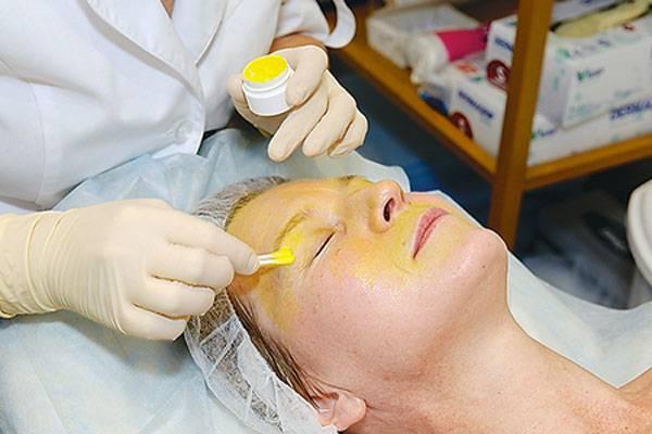Ретиноевый пилинг  (желтый пилинг)  для лица