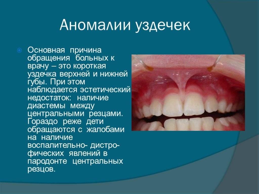 Заболевания ротовой полости: причины, особенности, фото