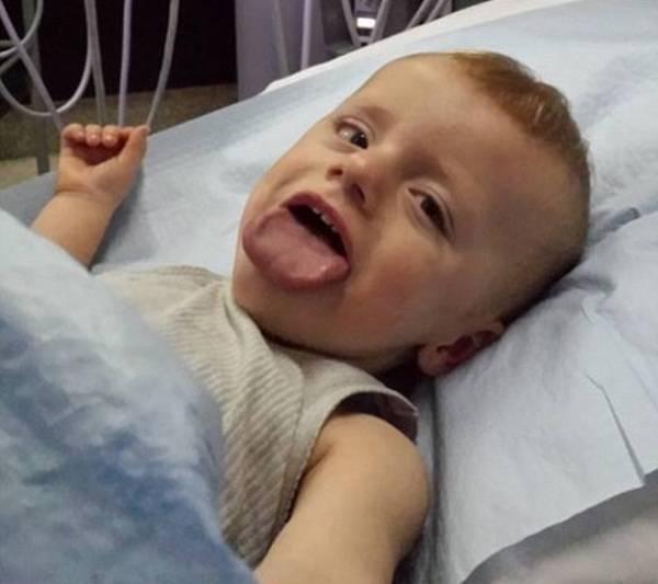 Увеличенный язык ребенка, макроглоссия у новорожденных, лечение