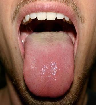 О чем может свидетельствовать появление коричневого налета на языке?