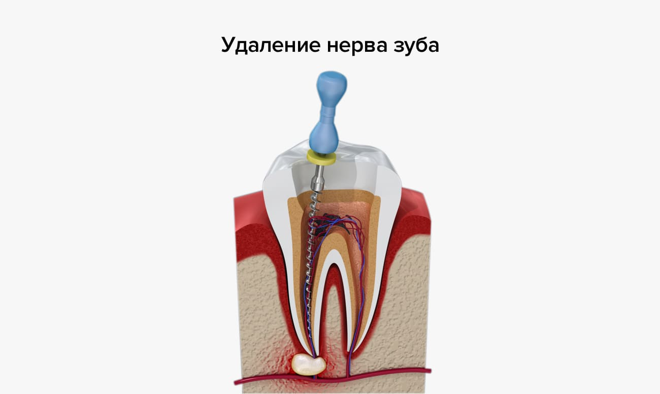 Болит десна около зуба: почему больно при надавливании на корень и как лечить боль