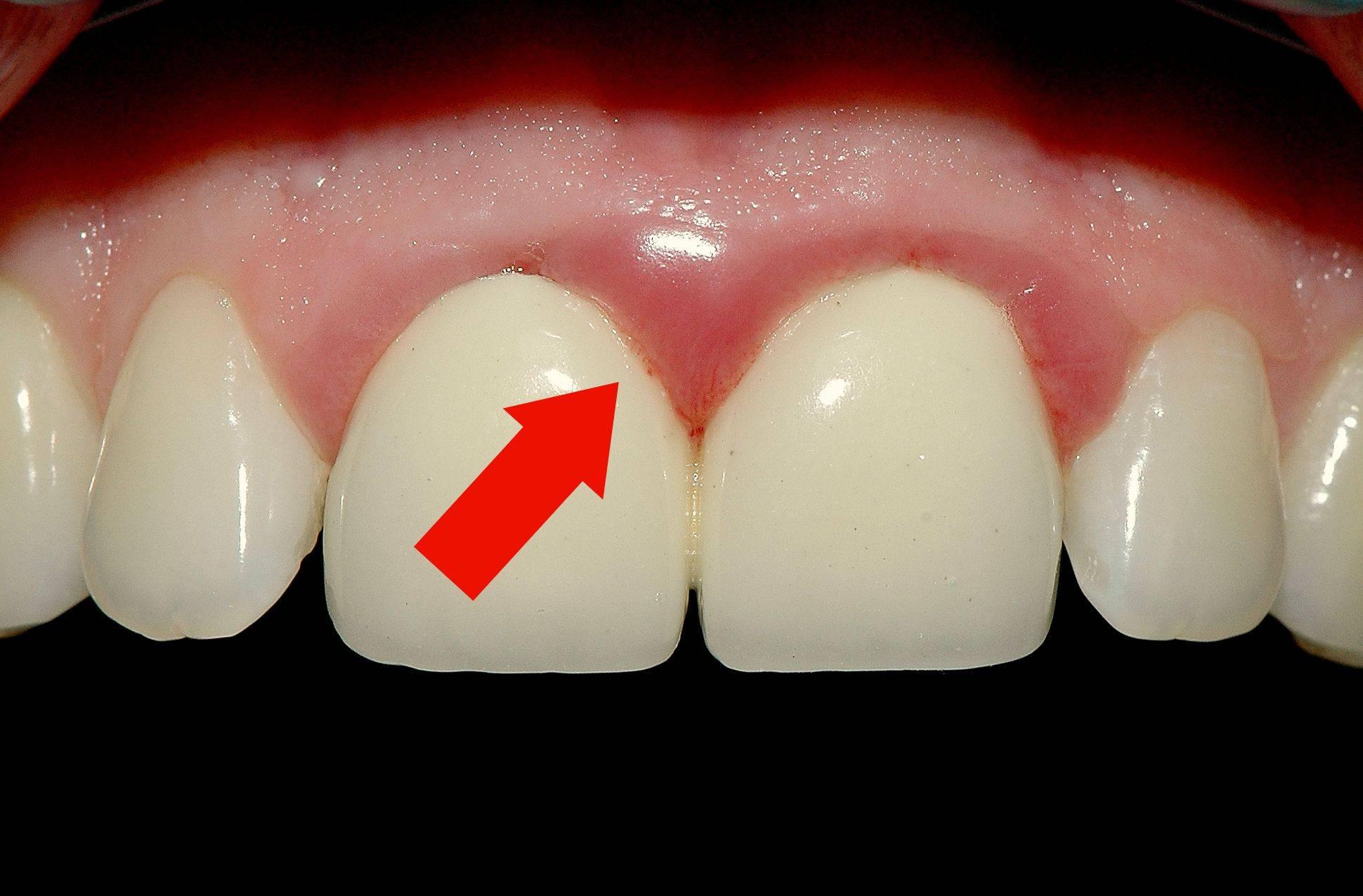 Причины появления боли в челюсти и что с этим делать