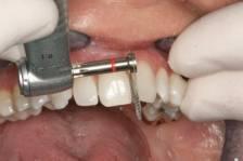 Сепарация зубов, как один из вариантов исправления неправильного прикуса
