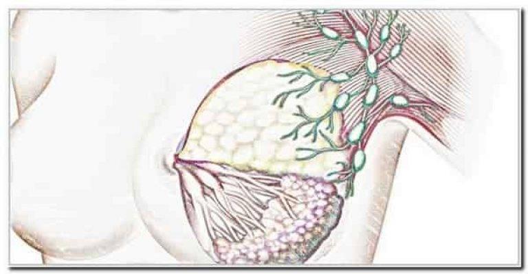 Метастазы рака молочной железы в легкие: симптомы, диагностика, лечение, выживаемость