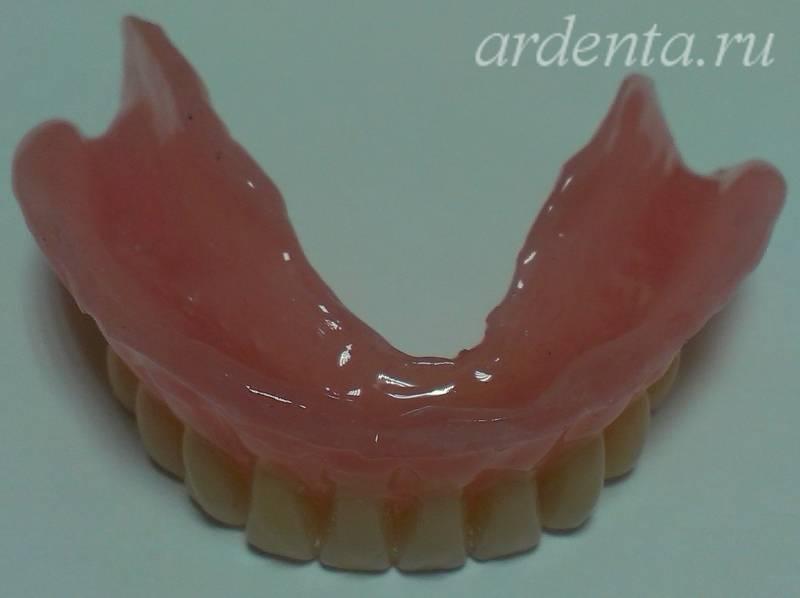 Мягкие зубные протезы – что это?