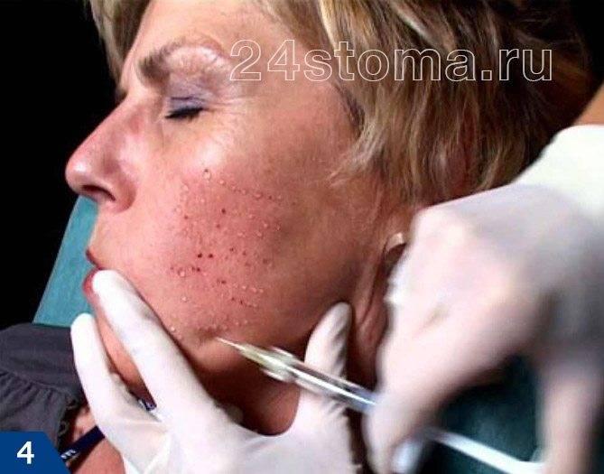 Методы продления молодости уколами для красоты после 50 лет