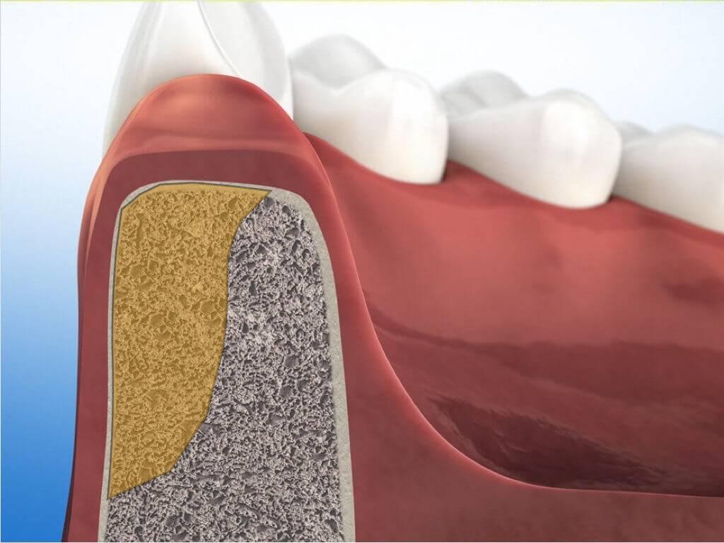 Альвеолит после удаления зуба: лечение
