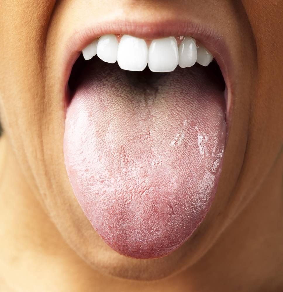 В чем причины белого языка у взрослого и требуется ли лечение при образовании такого налета