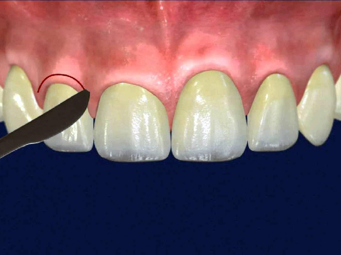 Что такое экзостоз челюсти?