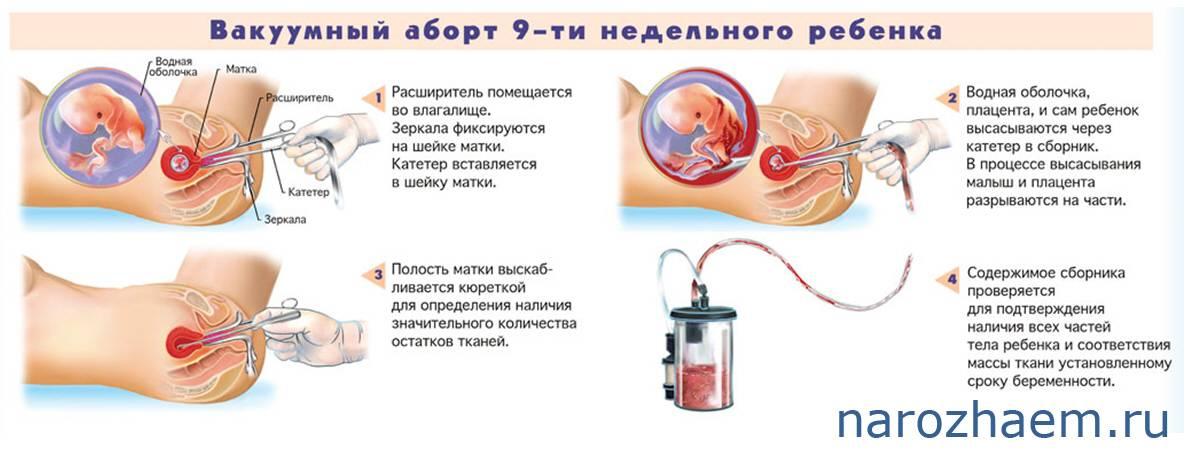 Можно ли делать эпиляцию при беременности и каким способом