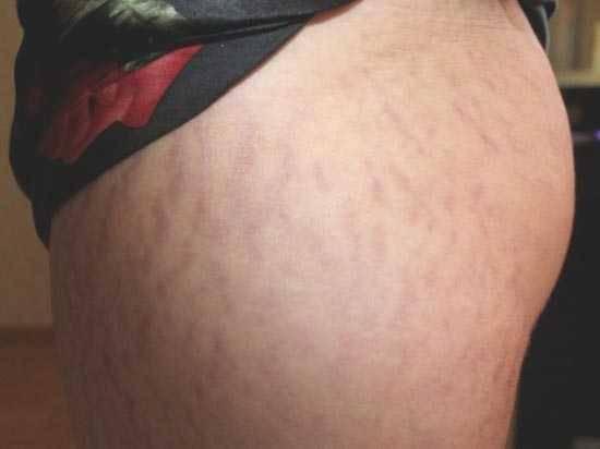 Почему появляются растяжки на коже, лечение растяжек и стрий