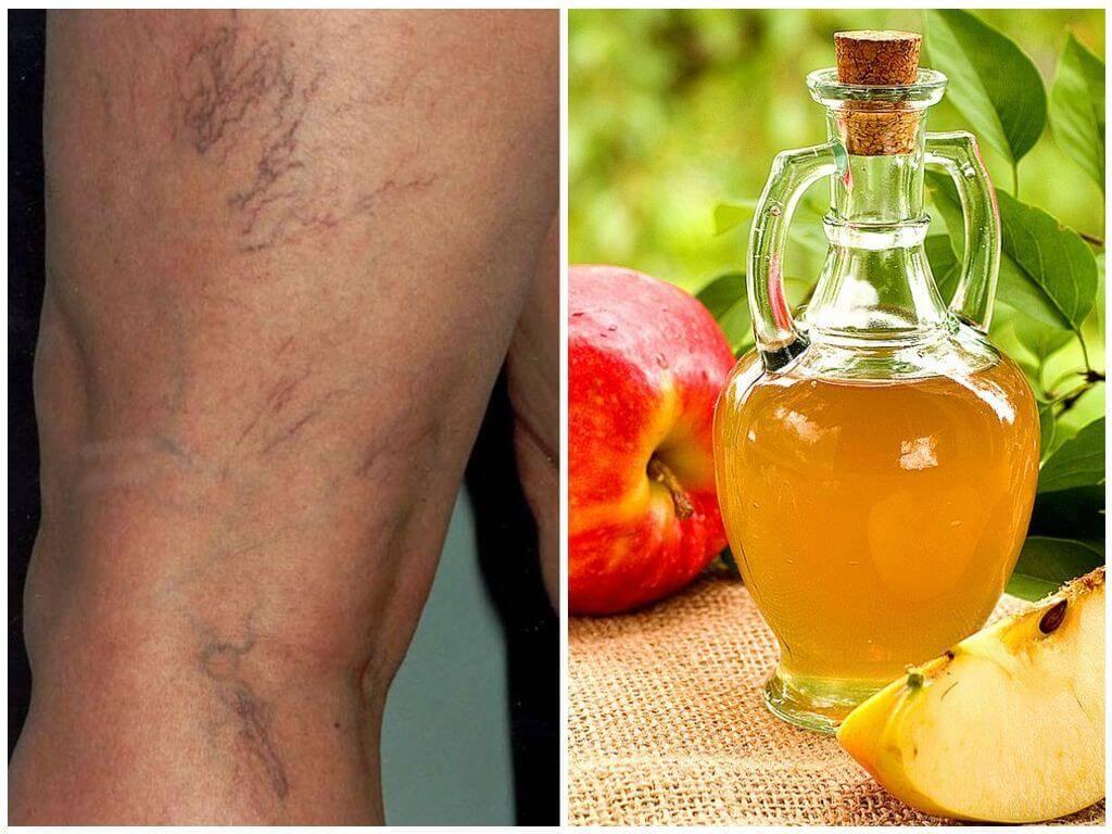 Помогает ли яблочный уксус похудеть и избавиться от целлюлита